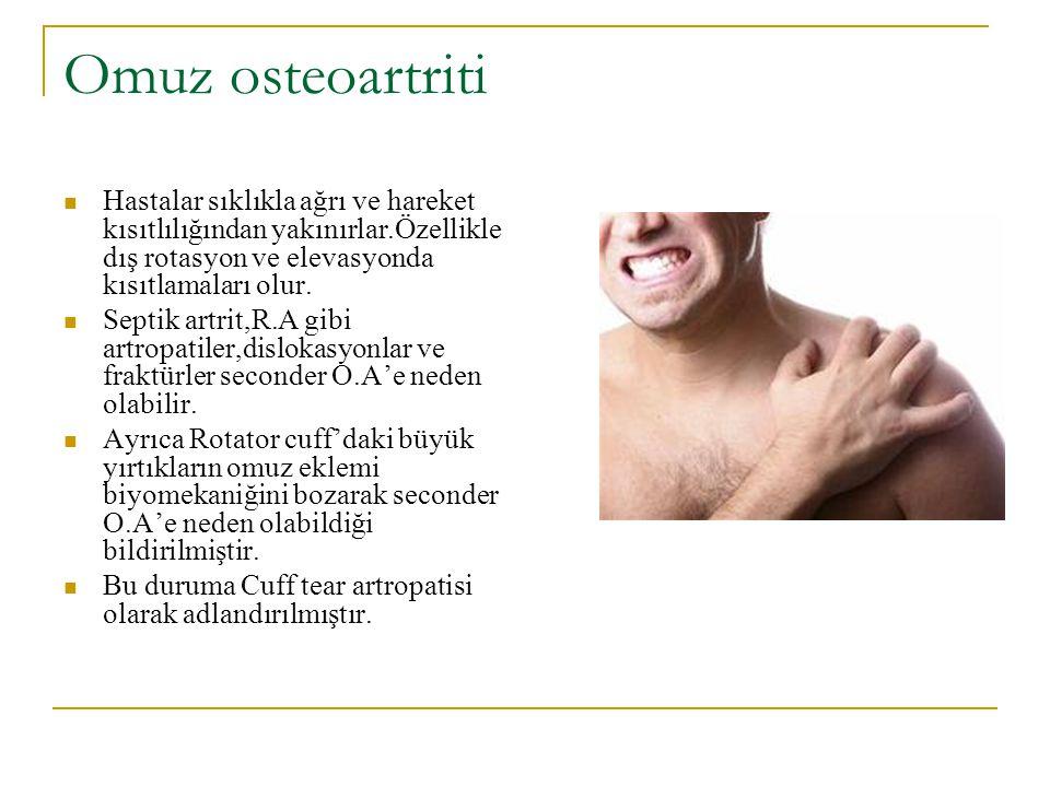 BULGULAR Antaljik yürüyüş Palpasyonda ağrı Hareket kısıtlılığı Eklem aralığının daralması Ekstremitede uzunluk farkı Skleroz ve kistik gelişimler