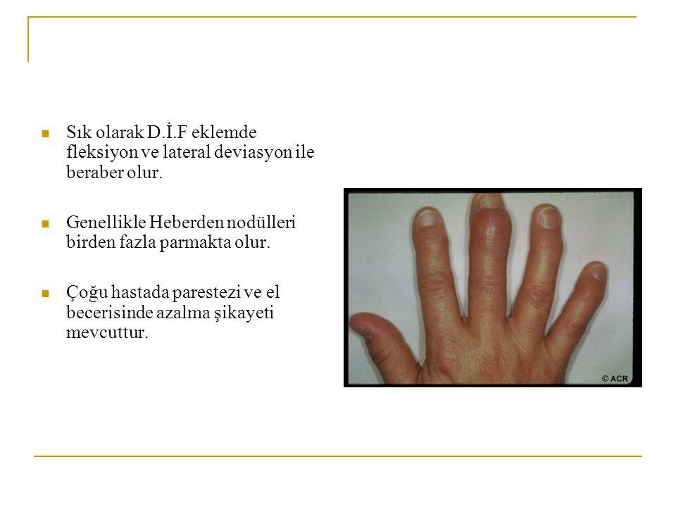 El el bileği El O.A'i genel O.A'in en sık görülen şeklidir 45 yaşının üzerinde kadınlarda erkeklere göre daha sık görülür El eklemlerinde en çok D.İ.F