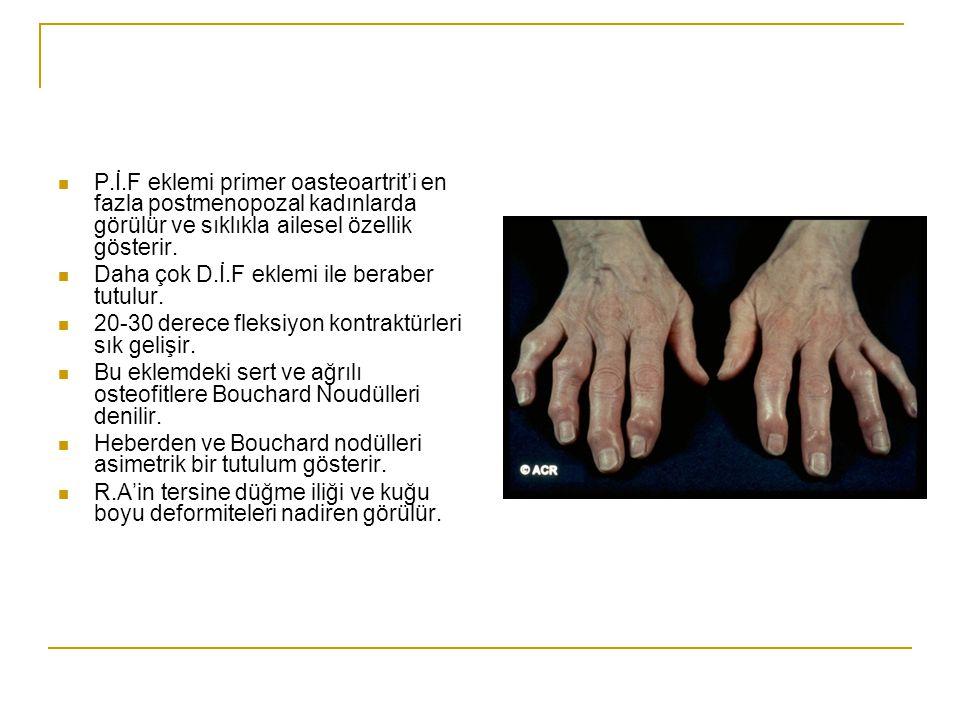 Sık olarak D.İ.F eklemde fleksiyon ve lateral deviasyon ile beraber olur. Genellikle Heberden nodülleri birden fazla parmakta olur. Çoğu hastada pares