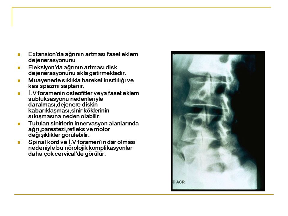 OMURGA OSTEOARTRİTİ İ.V diskler ve vertebra cisimlerini içeren dejeneratif değişmeler spondilozis olarak adlandırılmaktadır. Faset eklemlerde de tutul