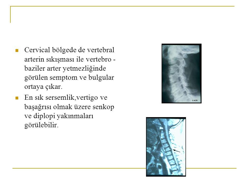 Extansion'da ağrının artması faset eklem dejenerasyonunu Fleksiyon'da ağrının artması disk dejenerasyonunu akla getirmektedir. Muayenede sıklıkla hare