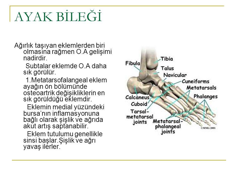 Hastalar ağrı ve hareket kısıtlılığından yakınırlar. Muayenede en sık karşılaşılan bulgu fleksiyon deformitesidir.