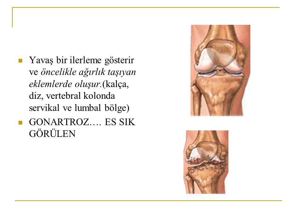 Yavaş bir ilerleme gösterir ve öncelikle ağırlık taşıyan eklemlerde oluşur.(kalça, diz, vertebral kolonda servikal ve lumbal bölge) GONARTROZ….