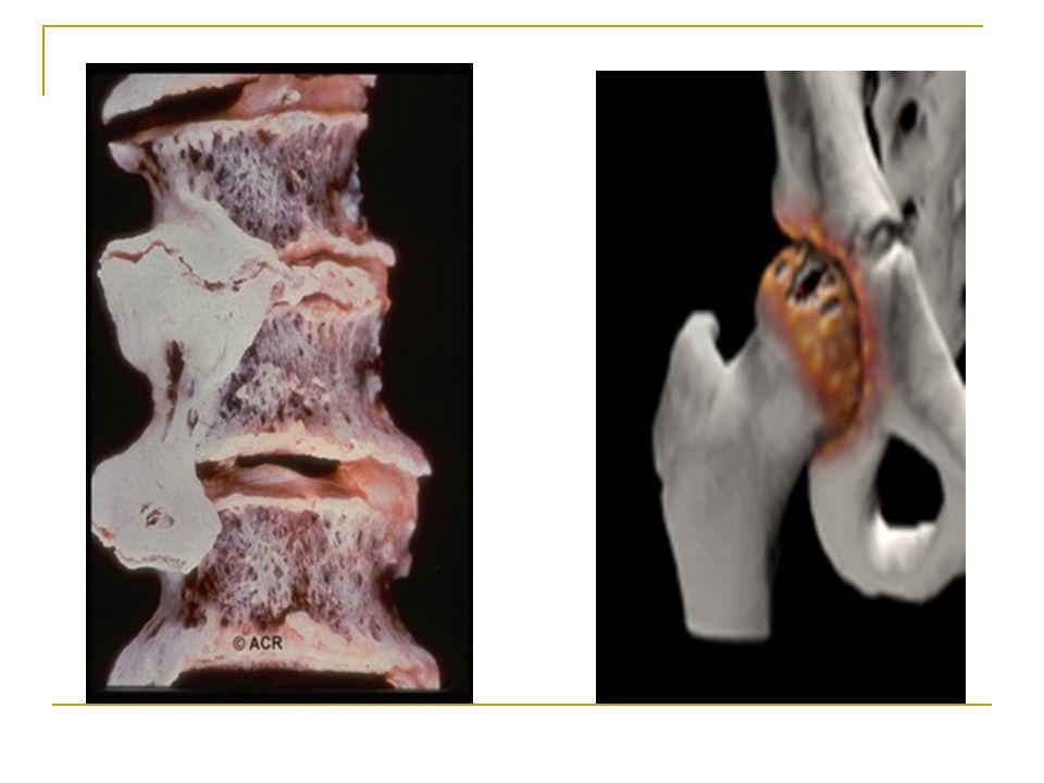 b) Eklem aralığında daralma: Bu değişiklikler sıklıkla taşıyıcı eklemlerde ortaya çıkar. Modifiye tekniklerle kemikler arası mesafe ile hiyalin kıkırd