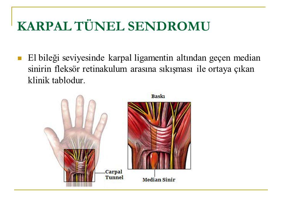 KARPAL TÜNEL SENDROMU El bileği seviyesinde karpal ligamentin altından geçen median sinirin fleksör retinakulum arasına sıkışması ile ortaya çıkan klinik tablodur.