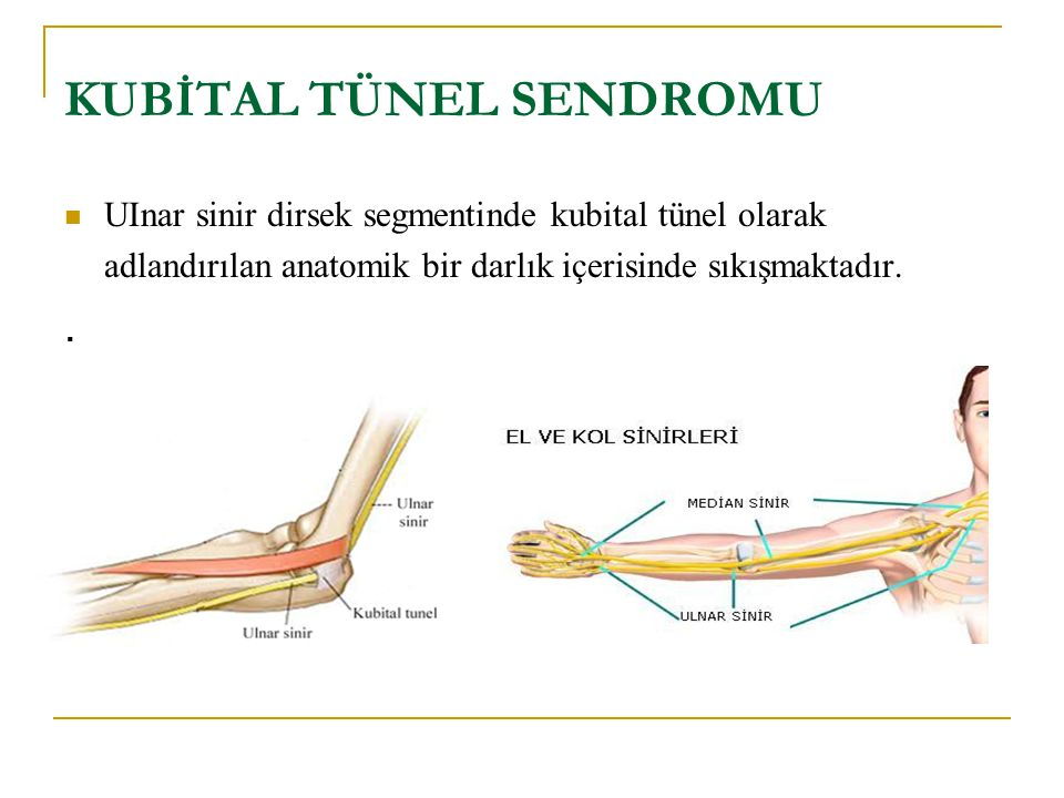KUBİTAL TÜNEL SENDROMU UInar sinir dirsek segmentinde kubital tünel olarak adlandırılan anatomik bir darlık içerisinde sıkışmaktadır..