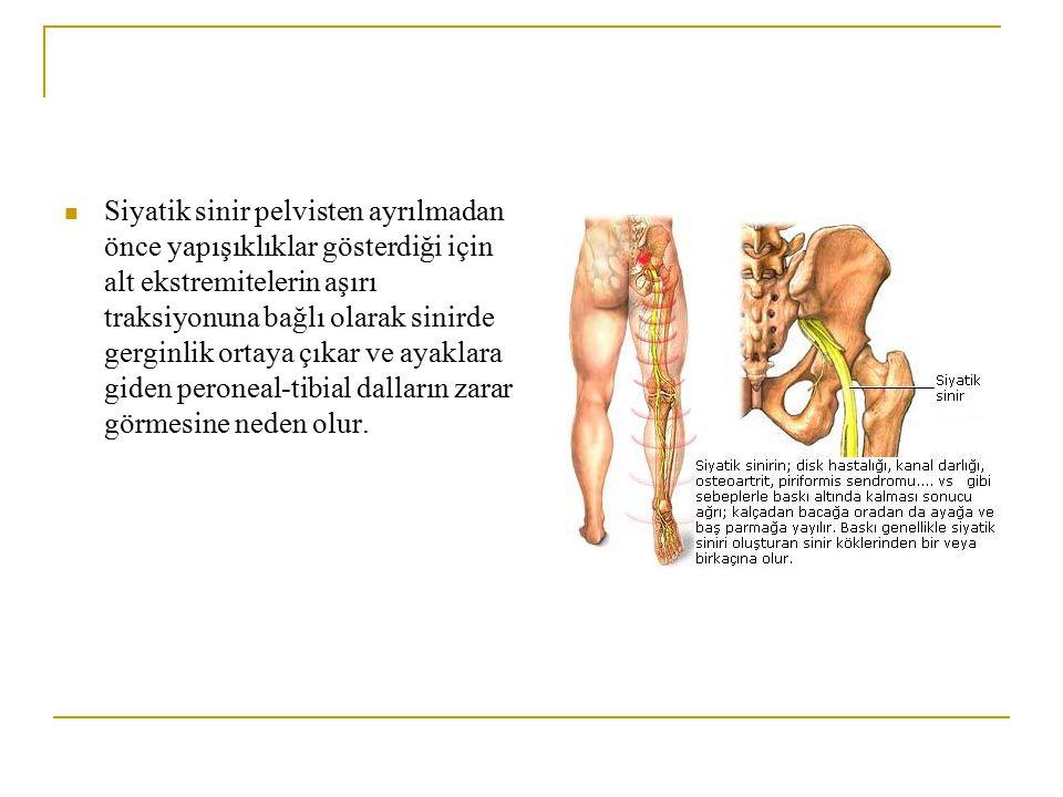 Siyatik sinir pelvisten ayrılmadan önce yapışıklıklar gösterdiği için alt ekstremitelerin aşırı traksiyonuna bağlı olarak sinirde gerginlik ortaya çıkar ve ayaklara giden peroneal-tibial dalların zarar görmesine neden olur.