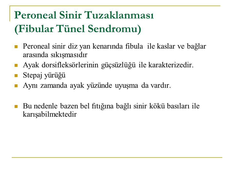 Peroneal Sinir Tuzaklanması (Fibular Tünel Sendromu) Peroneal sinir diz yan kenarında fibula ile kaslar ve bağlar arasında sıkışmasıdır Ayak dorsiflek