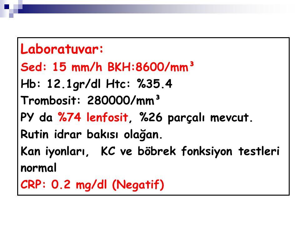 Laboratuvar: Sed: 15 mm/h BKH:8600/mm³ Hb: 12.1gr/dl Htc: %35.4 Trombosit: 280000/mm³ PY da %74 lenfosit, %26 parçalı mevcut. Rutin idrar bakısı olağa