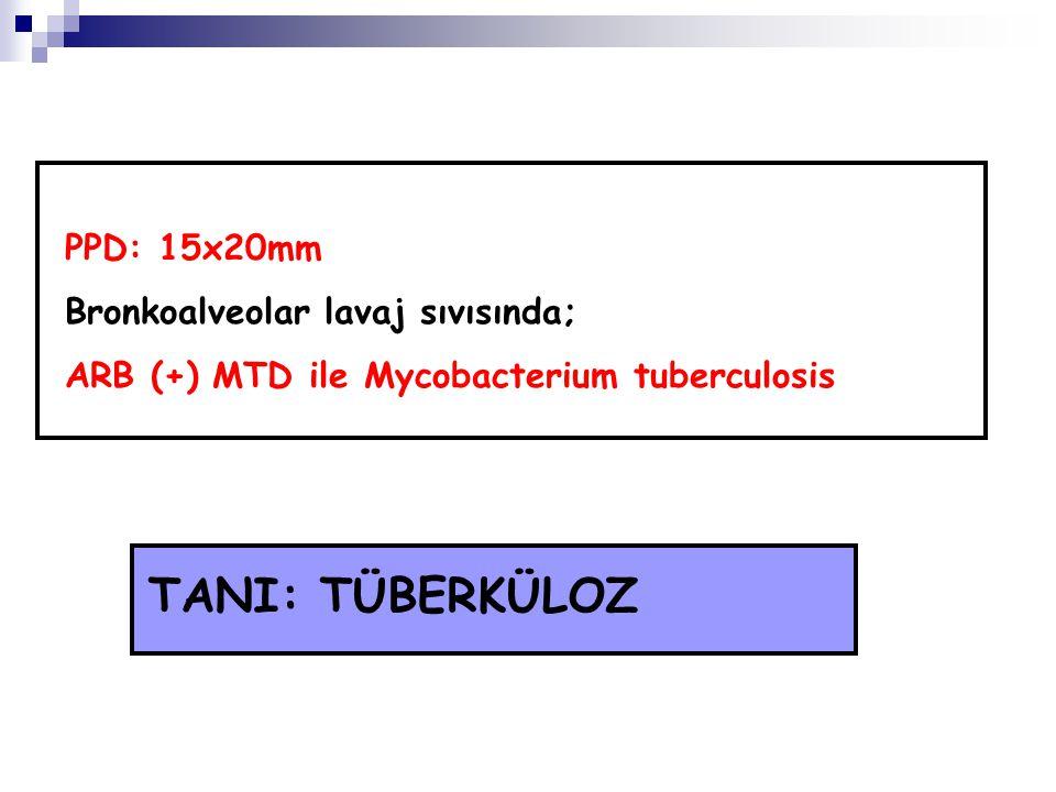 PPD: 15x20mm Bronkoalveolar lavaj sıvısında; ARB (+) MTD ile Mycobacterium tuberculosis TANI: TÜBERKÜLOZ