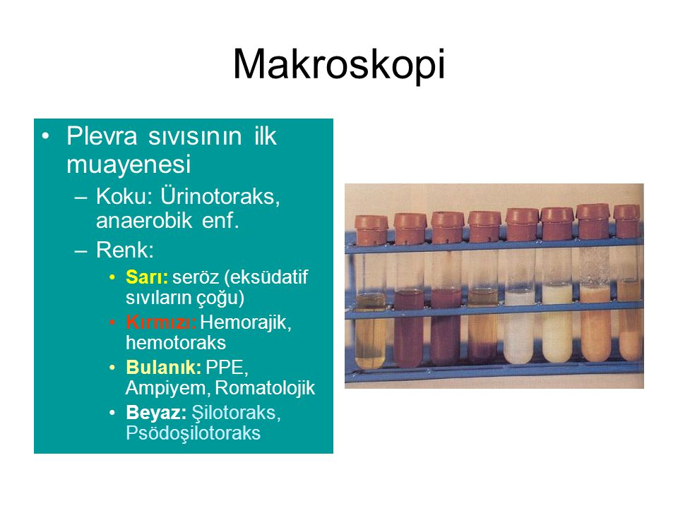 Makroskopi Plevra sıvısının ilk muayenesi –Koku: Ürinotoraks, anaerobik enf. –Renk: Sarı: seröz (eksüdatif sıvıların çoğu) Kırmızı: Hemorajik, hemotor