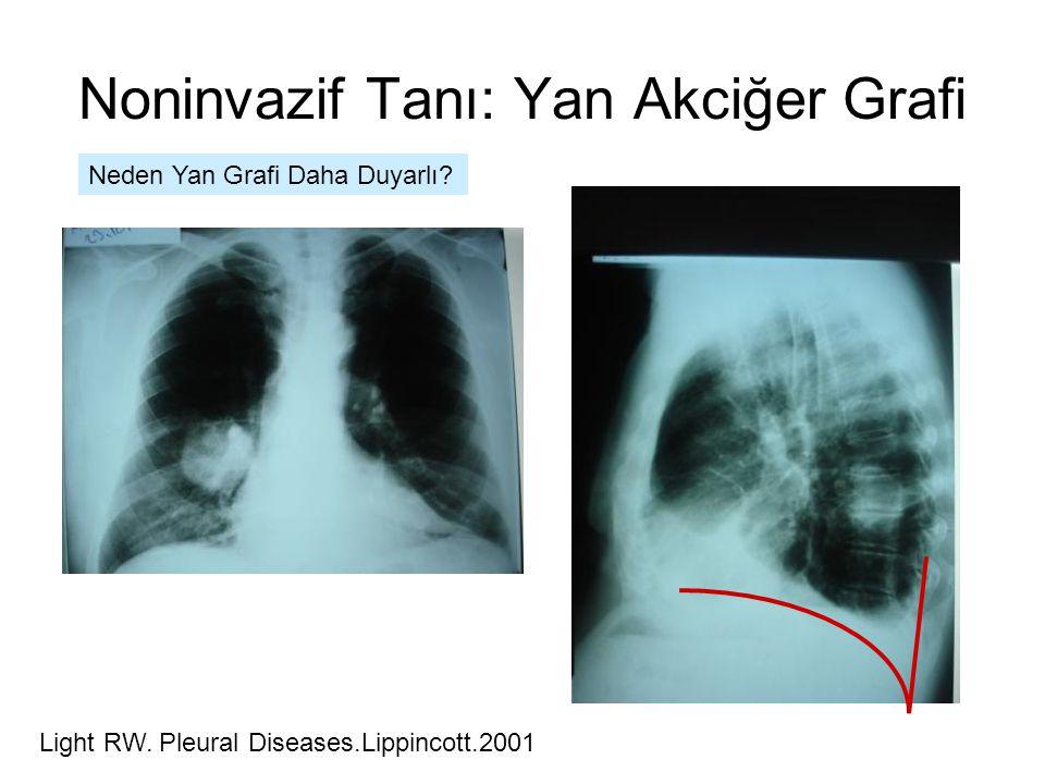 Noninvazif Tanı: Yan Akciğer Grafi Neden Yan Grafi Daha Duyarlı? Light RW. Pleural Diseases.Lippincott.2001