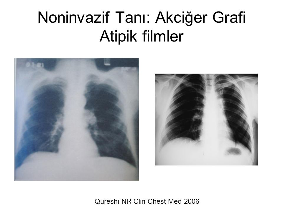 Qureshi NR Clin Chest Med 2006