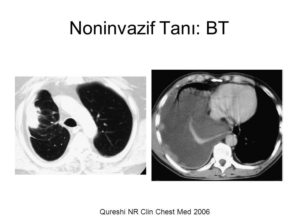 Qureshi NR Clin Chest Med 2006 Noninvazif Tanı: BT