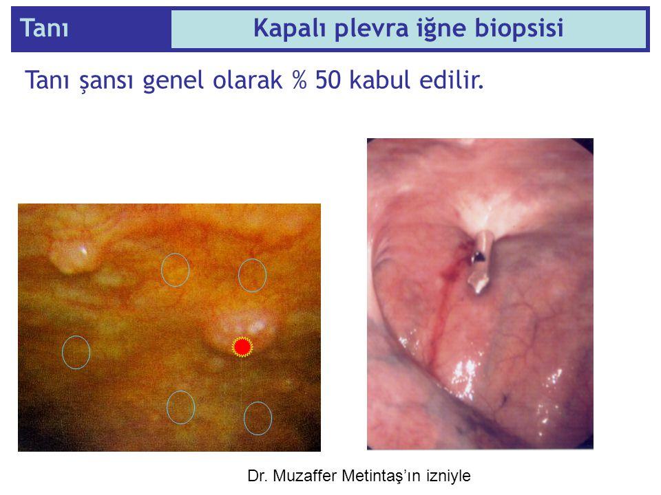 Tanı şansı genel olarak % 50 kabul edilir. TanıKapalı plevra iğne biopsisi Dr. Muzaffer Metintaş'ın izniyle