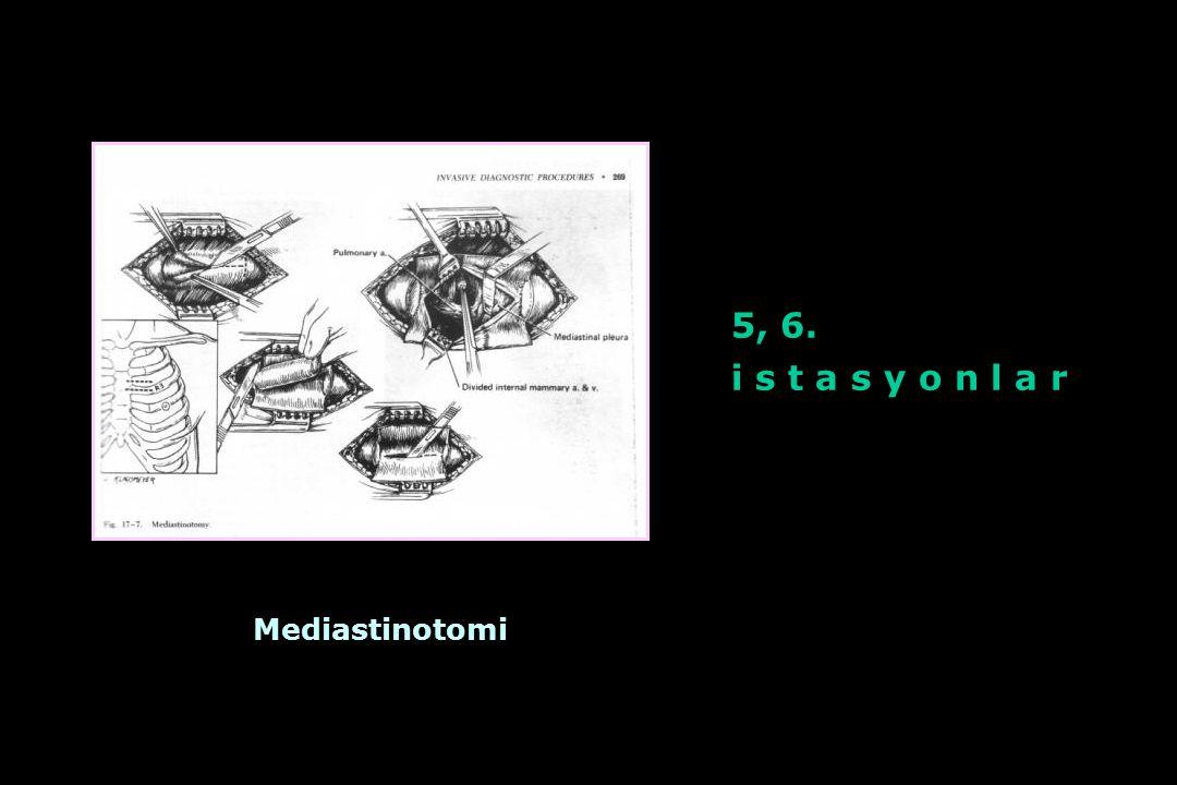Mediastinotomi 5, 6. i s t a s y o n l a r