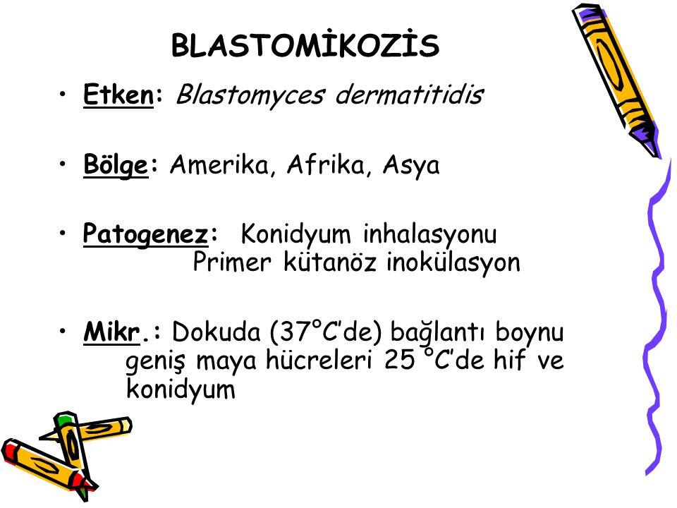 BLASTOMİKOZİS Etken: Blastomyces dermatitidis Bölge: Amerika, Afrika, Asya Patogenez: Konidyum inhalasyonu Primer kütanöz inokülasyon Mikr.: Dokuda (3