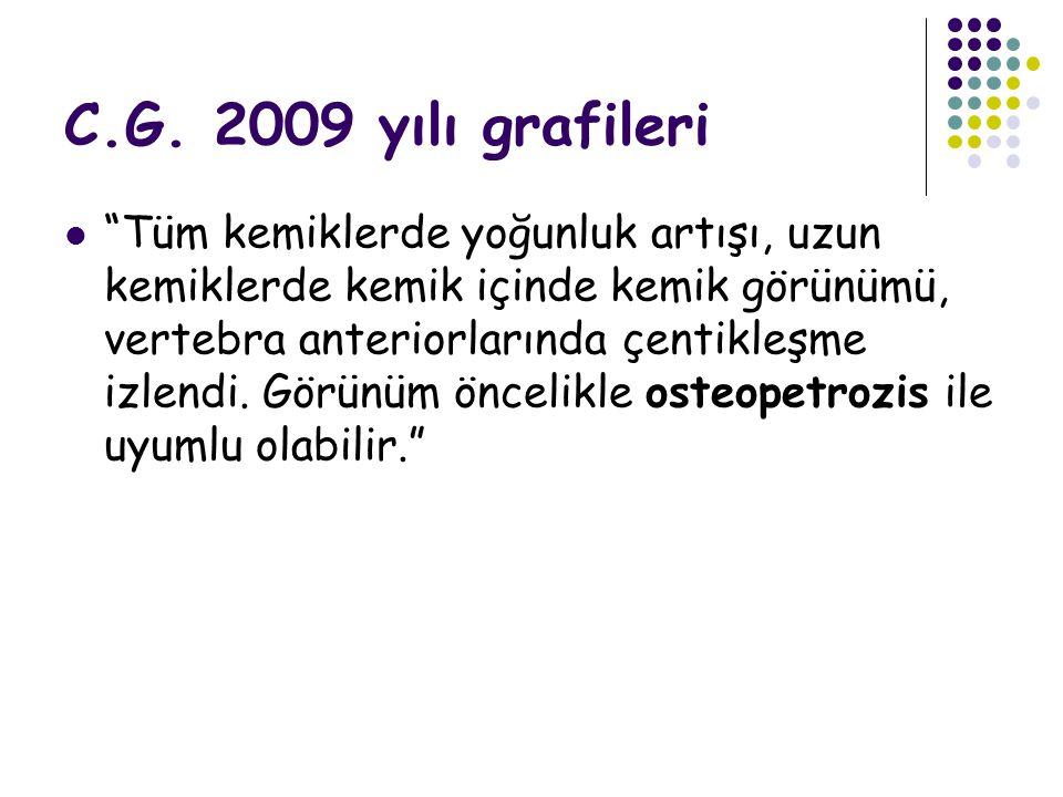 """C.G. 2009 yılı grafileri """"Tüm kemiklerde yoğunluk artışı, uzun kemiklerde kemik içinde kemik görünümü, vertebra anteriorlarında çentikleşme izlendi. G"""