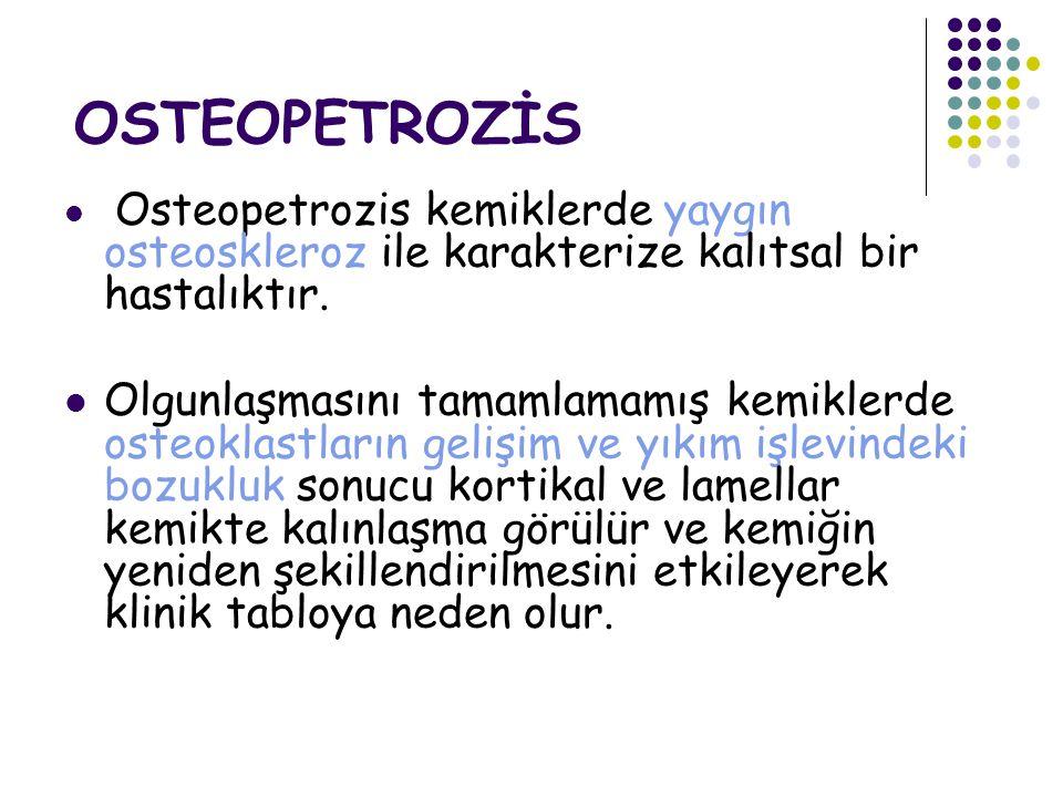 OSTEOPETROZİS Osteopetrozis kemiklerde yaygın osteoskleroz ile karakterize kalıtsal bir hastalıktır.