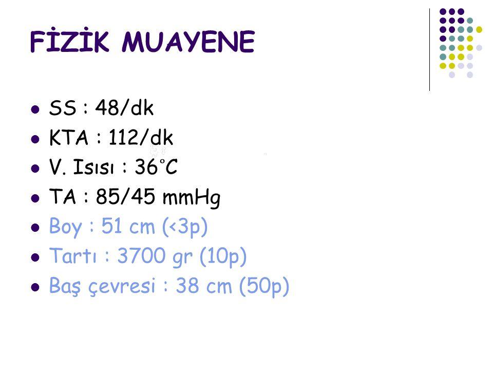 FİZİK MUAYENE SS : 48/dk KTA : 112/dk V.