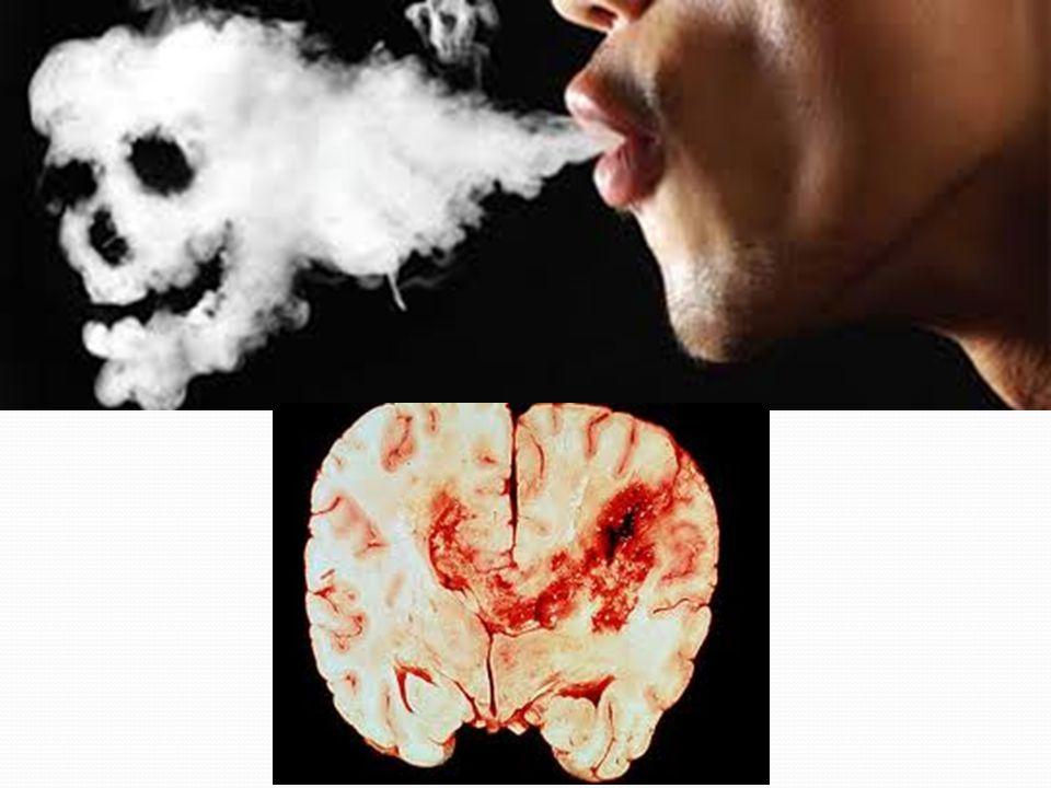 AKCİĞER HASTALIKLARI Akciğer hastalarının %85'i sigaraya bağlıdır.