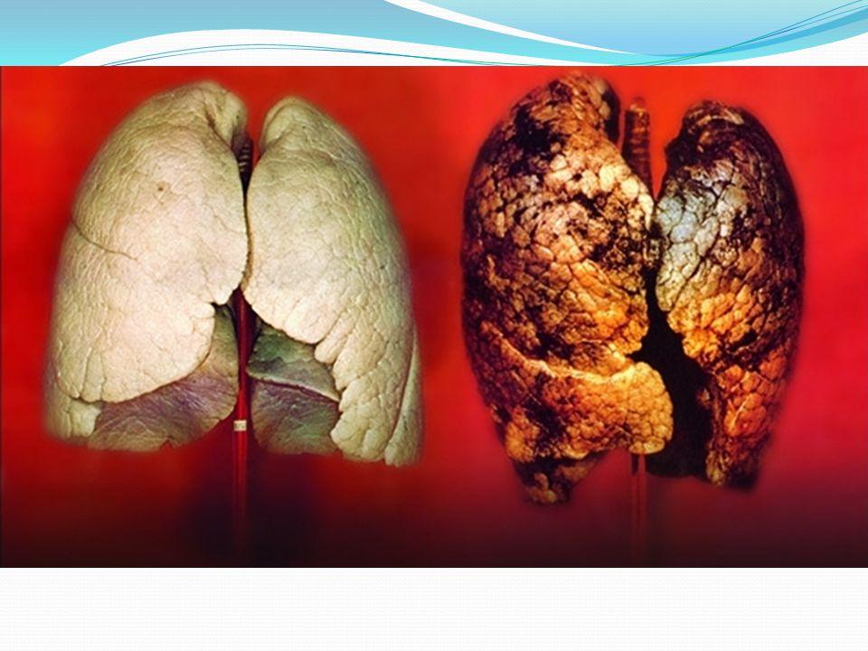 SİGARAYI BIRAKIRSAN 1 – 9 ay sonra öksürük krizleri, bitkinlik, kısa kısa nefes almalarınız azalacak.