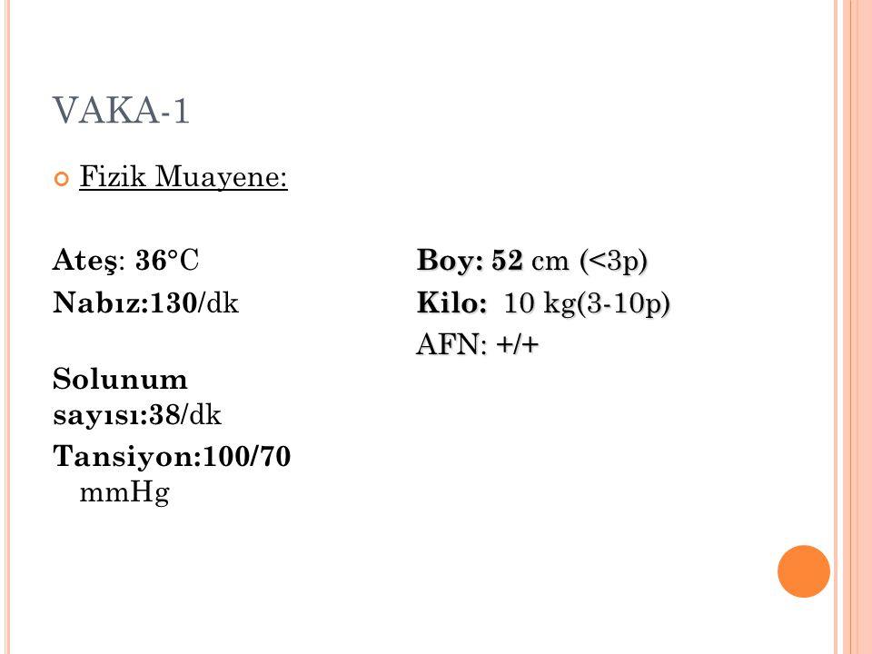 VAKA-1 Fizik Muayene: Ateş : 36 °C Nabız:130 /dk Solunum sayısı:38 /dk Tansiyon:100/70 mmHg Boy: 52 cm (<3p) Kilo: 10 kg(3-10p) AFN: +/+