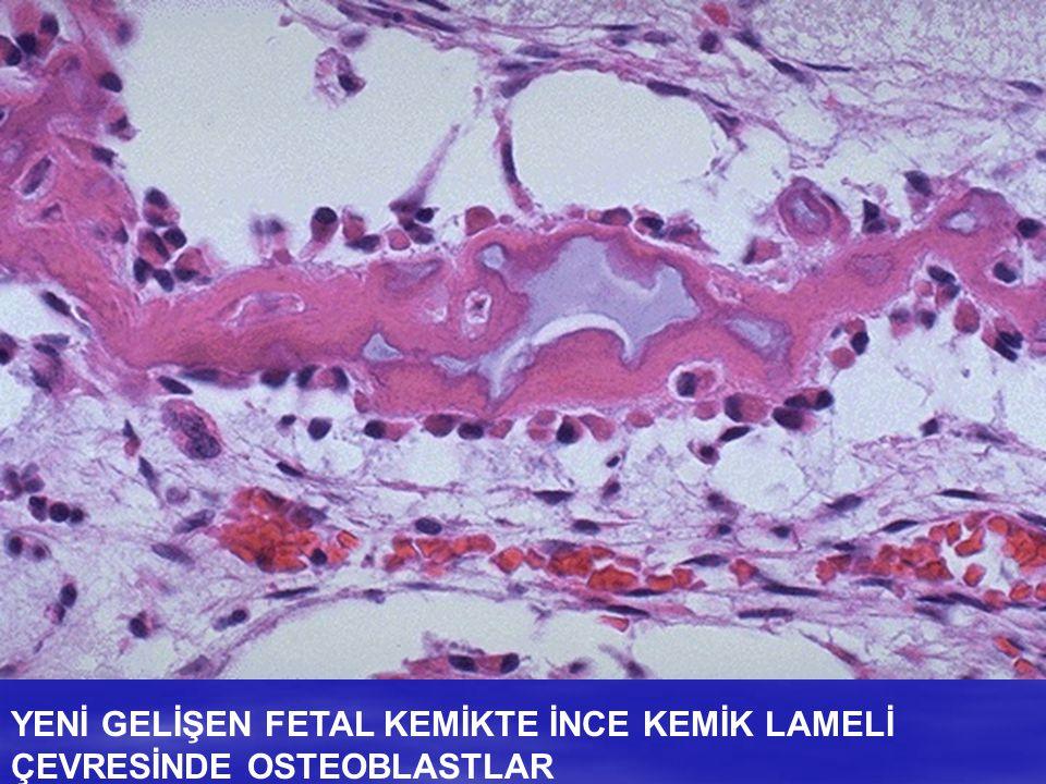 YENİ GELİŞEN FETAL KEMİKTE İNCE KEMİK LAMELİ ÇEVRESİNDE OSTEOBLASTLAR