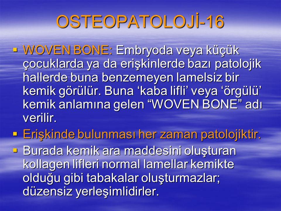 OSTEOPATOLOJİ-16  WOVEN BONE: Embryoda veya küçük çocuklarda ya da erişkinlerde bazı patolojik hallerde buna benzemeyen lamelsiz bir kemik görülür.