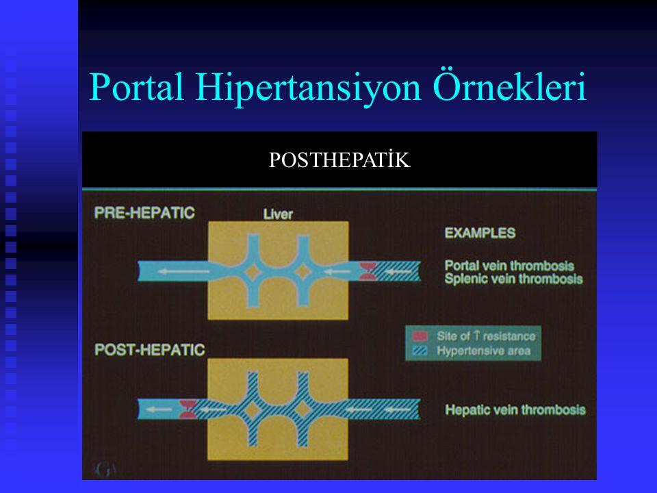 Portal Hipertansiyon Örnekleri POSTHEPATİK