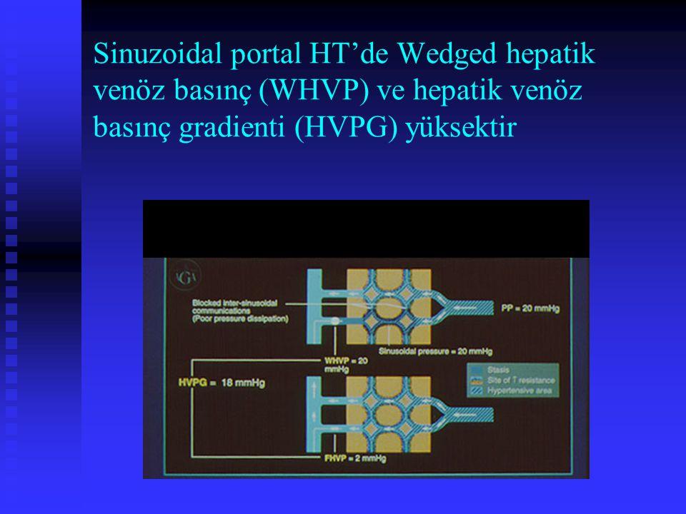 Sinuzoidal portal HT'de Wedged hepatik venöz basınç (WHVP) ve hepatik venöz basınç gradienti (HVPG) yüksektir
