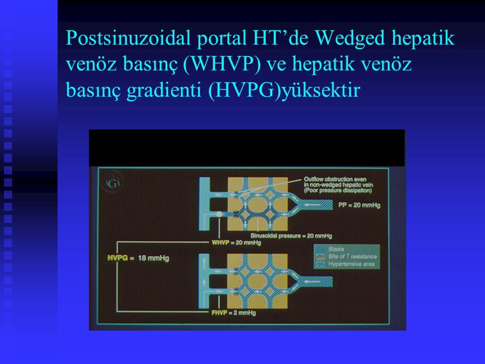 Postsinuzoidal portal HT'de Wedged hepatik venöz basınç (WHVP) ve hepatik venöz basınç gradienti (HVPG)yüksektir