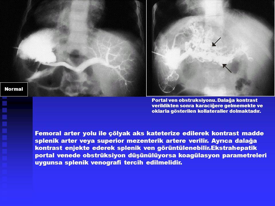 Femoral arter yolu ile çölyak aks kateterize edilerek kontrast madde splenik arter veya superior mezenterik artere verilir. Ayrıca dalağa kontrast enj