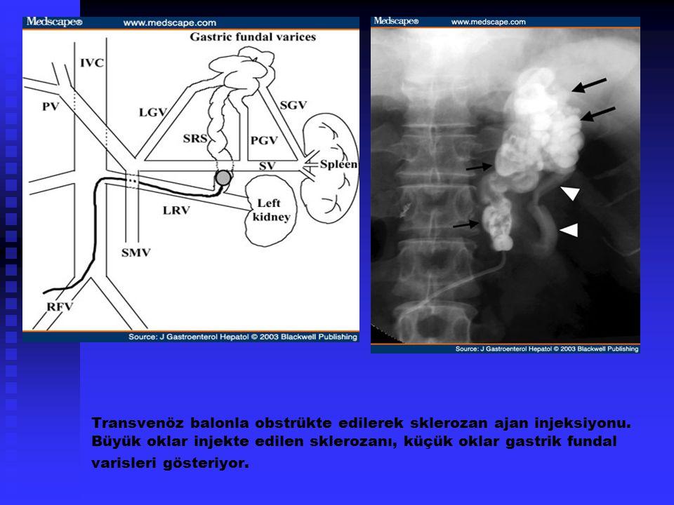 Transvenöz balonla obstrükte edilerek sklerozan ajan injeksiyonu. Büyük oklar injekte edilen sklerozanı, küçük oklar gastrik fundal varisleri gösteriy