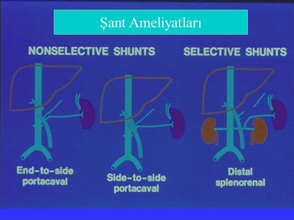 Şant Ameliyatları