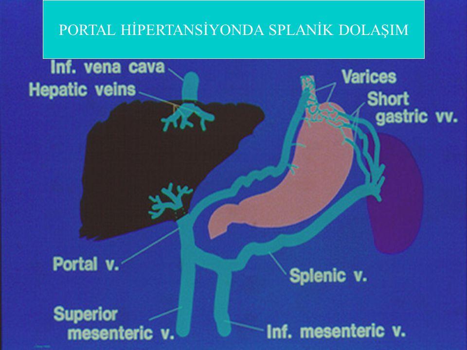 Gastroözefagial Varislerden Kanamada Mortalite Yüksektir 1.Varis Kanamasında mortalite (%) Varis Kanamalı Hastaların Sayısı