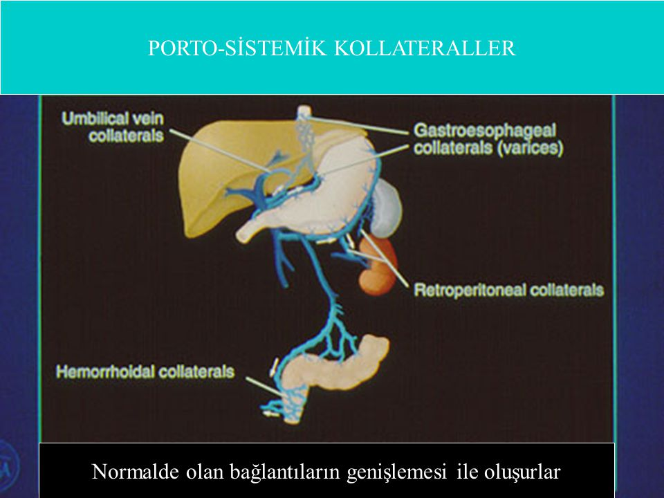 Gastroözefagial Varisler