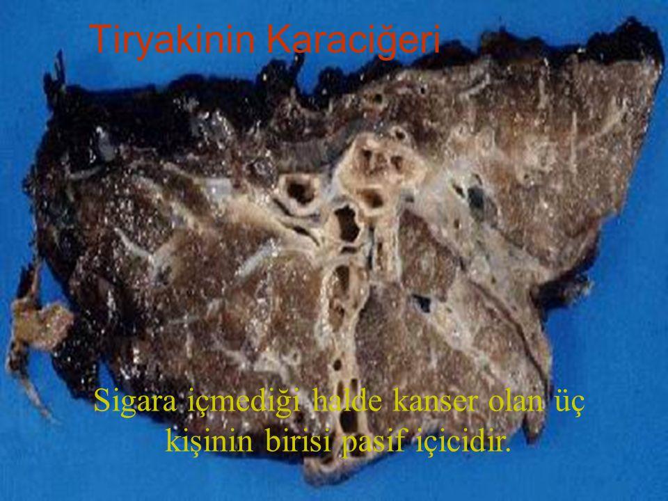 Tiryakinin Karaciğeri Sigara içmediği halde kanser olan üç kişinin birisi pasif içicidir.