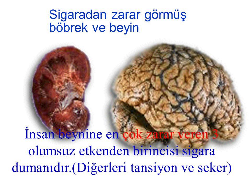 Sigaradan zarar görmüş böbrek ve beyin İnsan beynine en çok zarar veren 3 olumsuz etkenden birincisi sigara dumanıdır.(Diğerleri tansiyon ve seker)