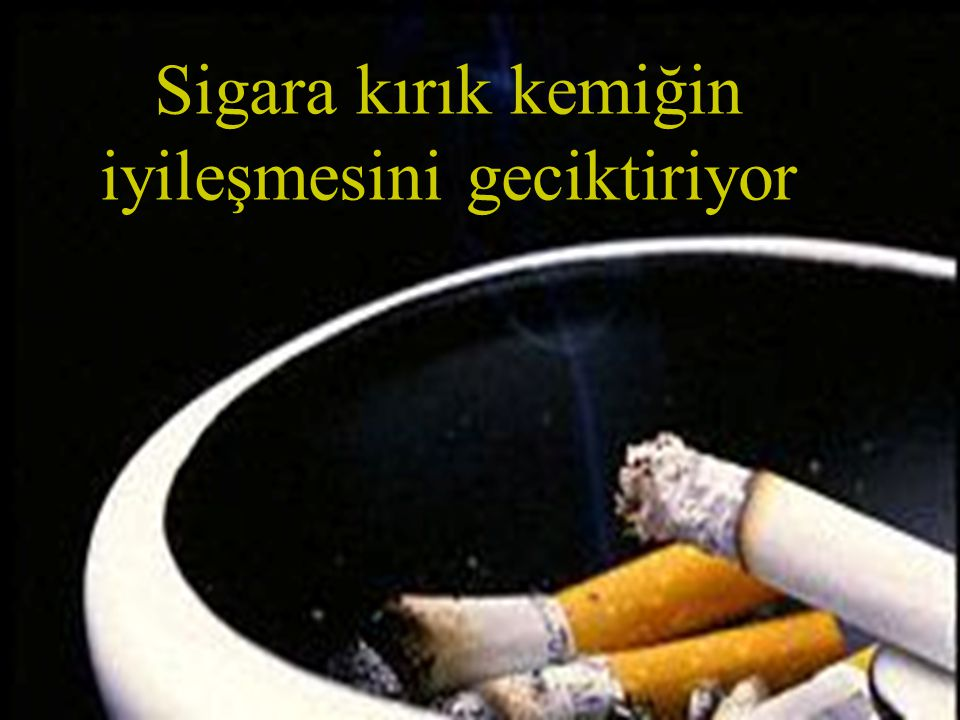Sigara kırık kemiğin iyileşmesini geciktiriyor