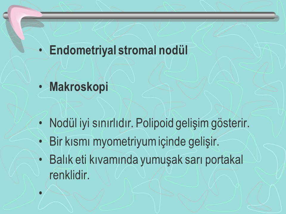 Endometriyal stromal nodül Makroskopi Nodül iyi sınırlıdır. Polipoid gelişim gösterir. Bir kısmı myometriyum içinde gelişir. Balık eti kıvamında yumuş