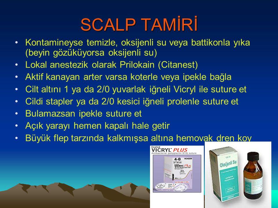 SCALP TAMİRİ Kontamineyse temizle, oksijenli su veya battikonla yıka (beyin gözüküyorsa oksijenli su) Lokal anestezik olarak Prilokain (Citanest) Akti