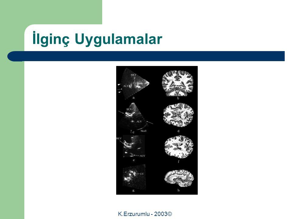 K.Erzurumlu - 2003© İlginç Uygulamalar