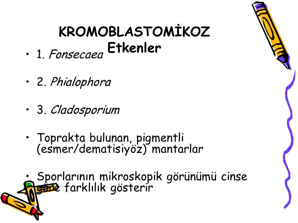 KROMOBLASTOMİKOZ Etkenler 1. Fonsecaea 2. Phialophora 3. Cladosporium Toprakta bulunan, pigmentli (esmer/dematisiyöz) mantarlar Sporlarının mikroskopi