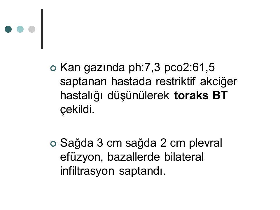 Kan gazında ph:7,3 pco2:61,5 saptanan hastada restriktif akciğer hastalığı düşünülerek toraks BT çekildi. Sağda 3 cm sağda 2 cm plevral efüzyon, bazal