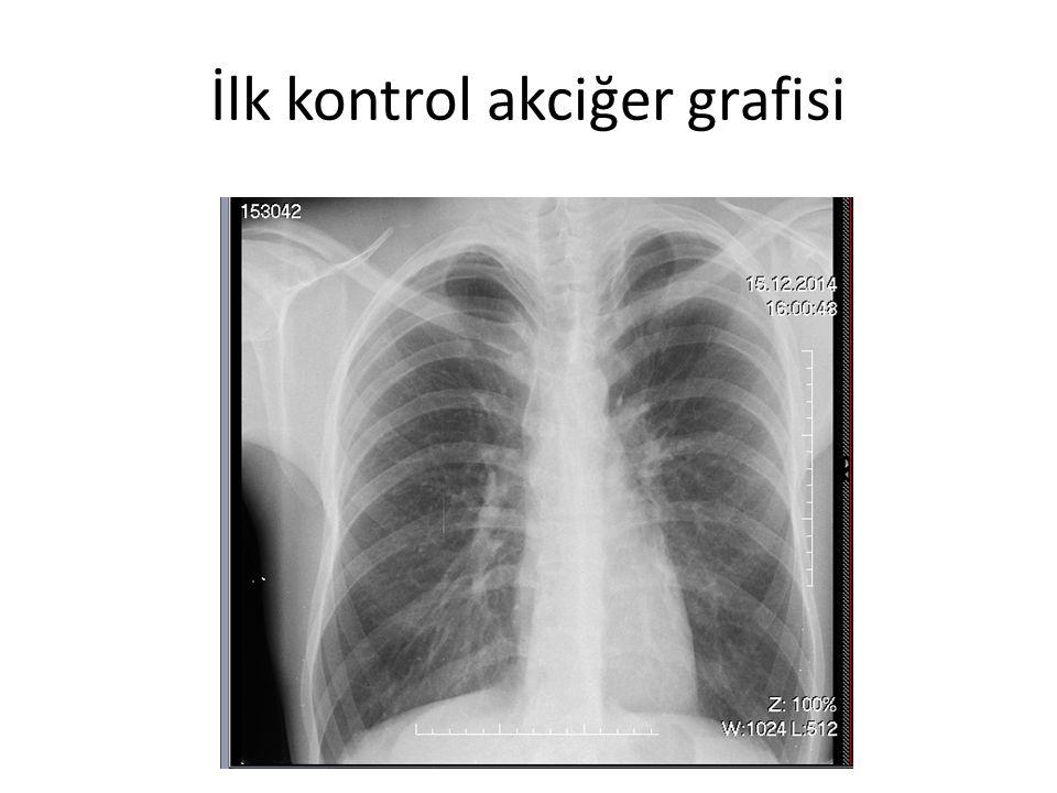 İlk kontrol akciğer grafisi
