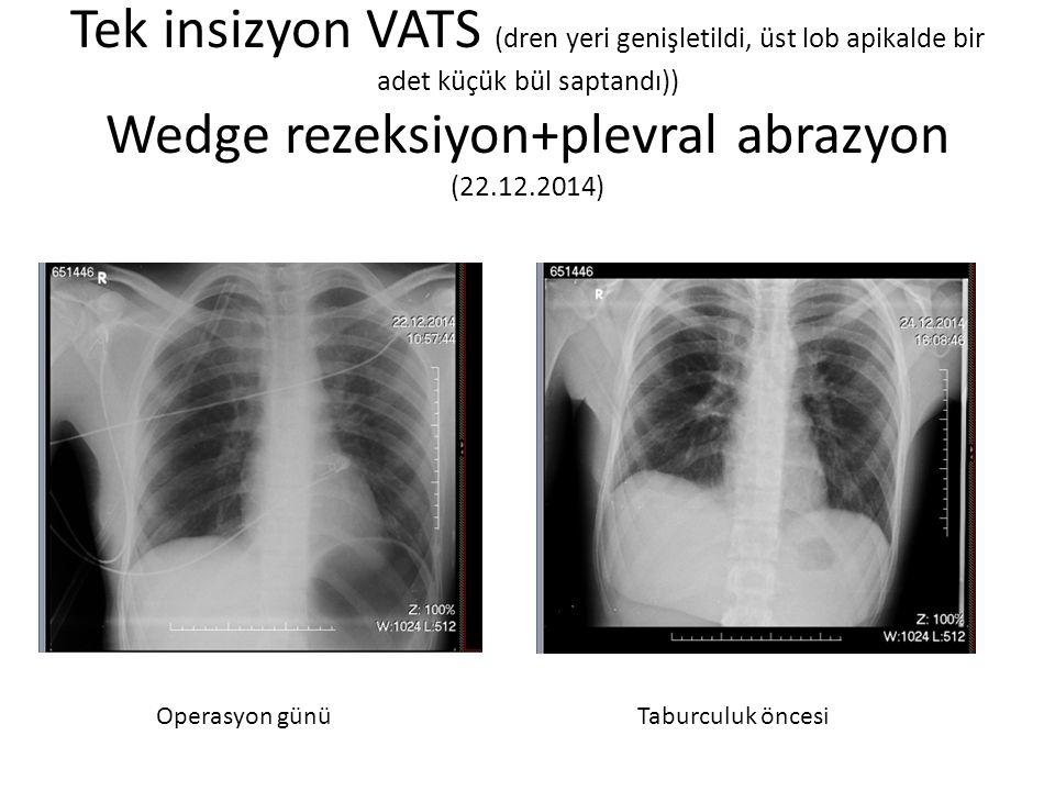 Tek insizyon VATS (dren yeri genişletildi, üst lob apikalde bir adet küçük bül saptandı)) Wedge rezeksiyon+plevral abrazyon (22.12.2014) Operasyon gün