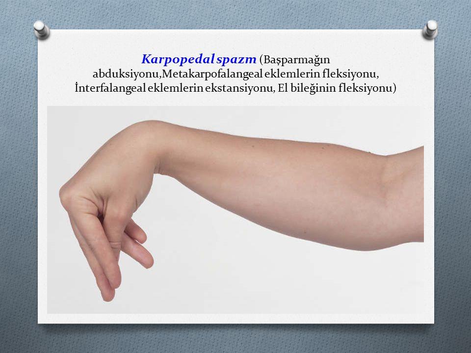 Karpopedal spazm (Başparmağın abduksiyonu,Metakarpofalangeal eklemlerin fleksiyonu, İnterfalangeal eklemlerin ekstansiyonu, El bileğinin fleksiyonu)