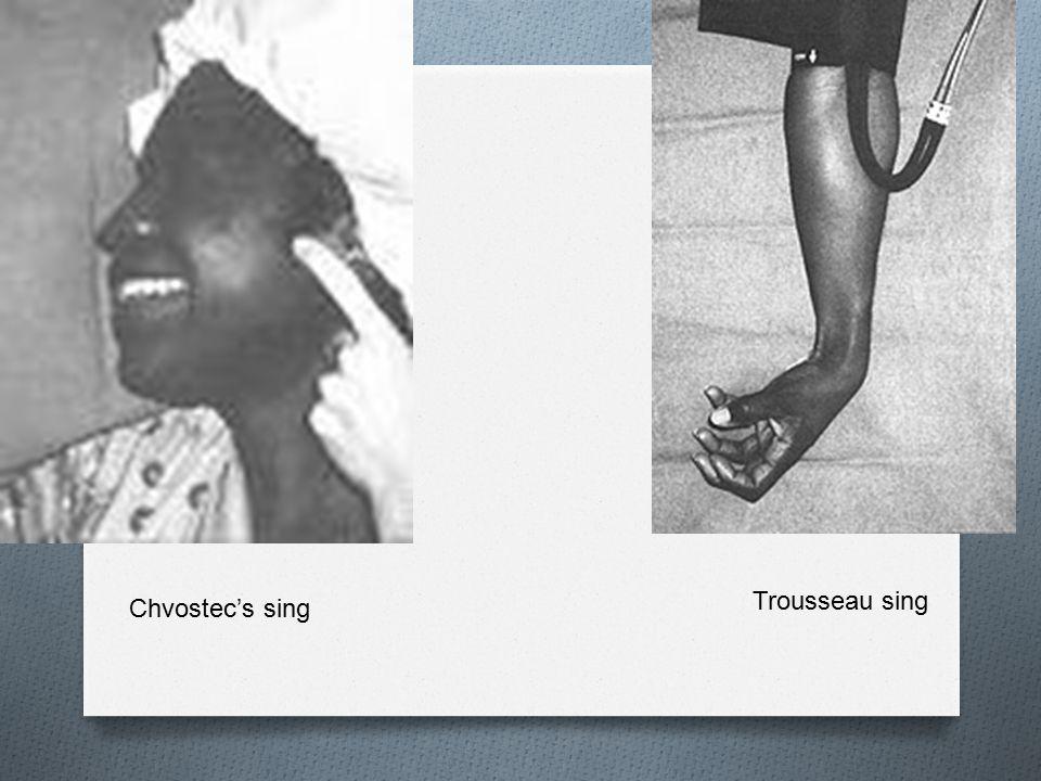 Chvostec's sing Trousseau sing