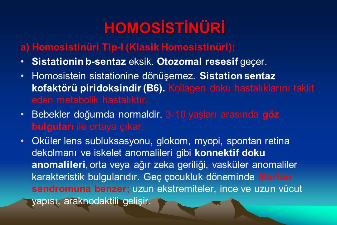 HOMOSİSTİNÜRİ a) Homosistinüri Tip-I (Klasik Homosistinüri); Sistationin b-sentaz eksik. Otozomal resesif geçer. Homosistein sistationine dönüşemez. S